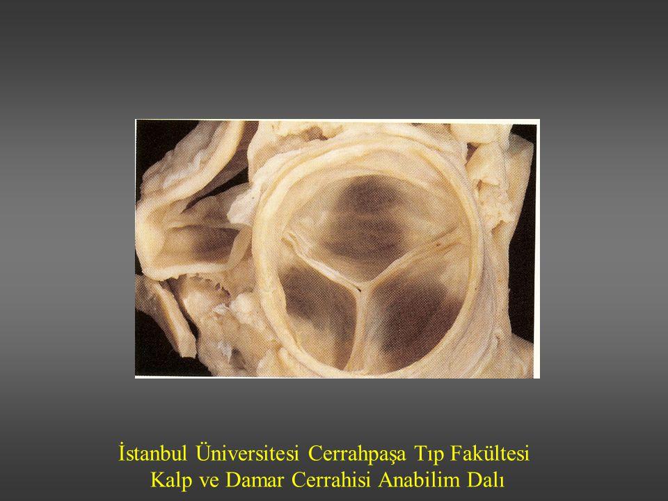 İstanbul Üniversitesi Cerrahpaşa Tıp Fakültesi Kalp ve Damar Cerrahisi Anabilim Dalı AORT DARLIĞI-Ameliyat endikasyonları Semptomatik hastalar (anjina, dispne, senkop) Asemptomatik ciddi aort darlığı ve Sol ventrikül sistolik disfonksiyonu gelişiyorsa Egzersize anormal cevap (hipotansiyon, PAWP >25 mmHg) Ventriküler taşikardi Belirgin sol ventrikül hipertrofisi Kapak alanı<0.6 cm2 Aort gradiyenti>50 mmHg Asemptomatik ciddi aort darlığı ve cerrahi girişim gerektiren diğer kardiyak patolojiler (CABG, kapak, çıkan aort girişimleri)