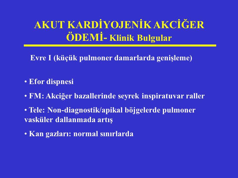 AKUT KARDİYOJENİK AKCİĞER ÖDEMİ- Klinik Bulgular Evre I (küçük pulmoner damarlarda genişleme) Efor dispnesi FM: Akciğer bazallerinde seyrek inspiratuv