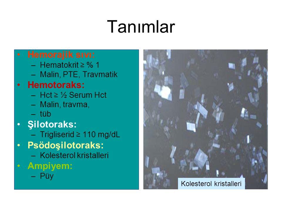 Tanımlar Hemorajik sıvı: –Hematokrit ≥ % 1 –Malin, PTE, Travmatik Hemotoraks: –Hct ≥ ½ Serum Hct –Malin, travma, –tüb Şilotoraks: –Trigliserid ≥ 110 mg/dL Psödoşilotoraks: –Kolesterol kristalleri Ampiyem: –Püy Kolesterol kristalleri