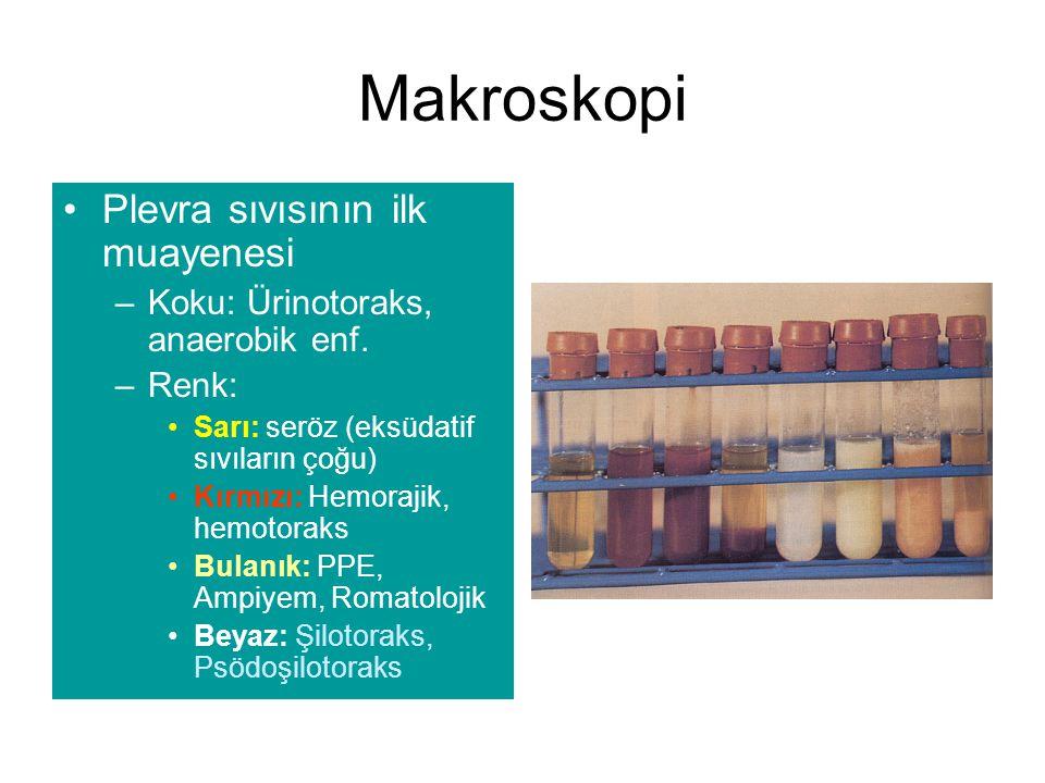 Makroskopi Plevra sıvısının ilk muayenesi –Koku: Ürinotoraks, anaerobik enf.