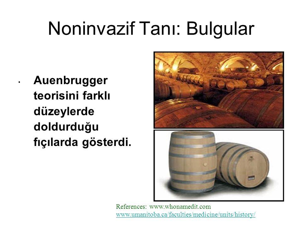 Auenbrugger teorisini farklı düzeylerde doldurduğu fıçılarda gösterdi.