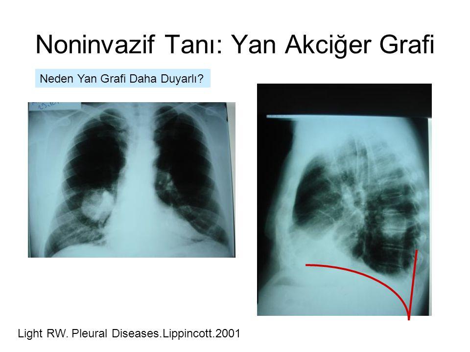 Noninvazif Tanı: Yan Akciğer Grafi Neden Yan Grafi Daha Duyarlı.