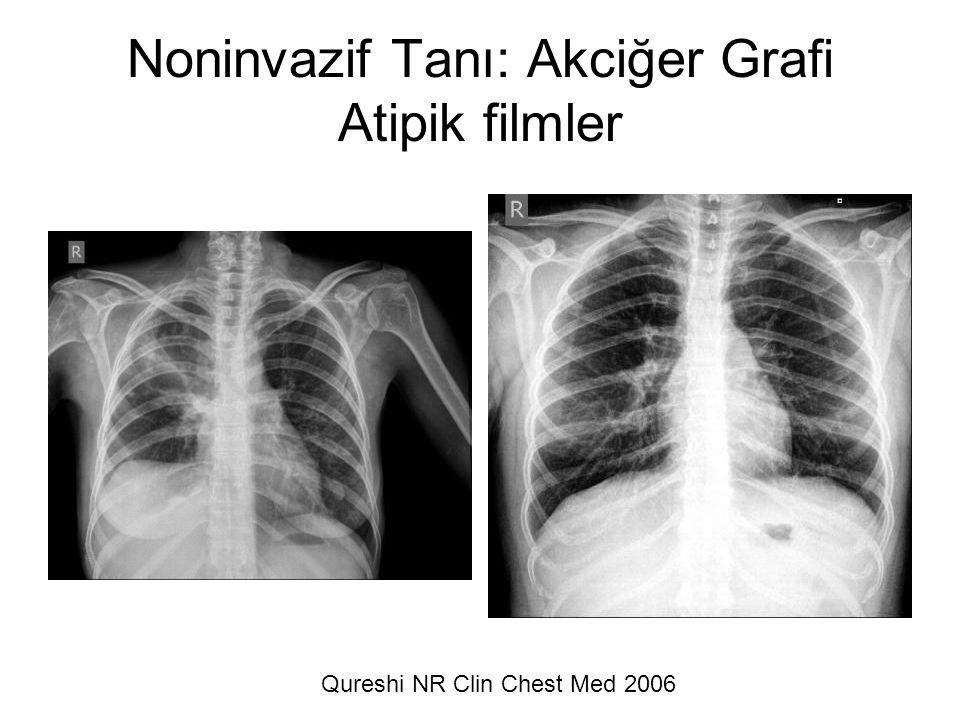 Noninvazif Tanı: Akciğer Grafi Atipik filmler Qureshi NR Clin Chest Med 2006