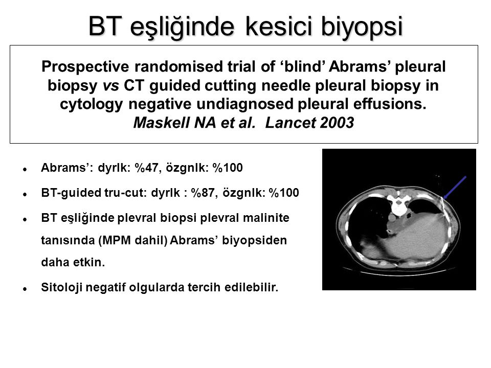 Prospective randomised trial of 'blind' Abrams' pleural biopsy vs CT guided cutting needle pleural biopsy in cytology negative undiagnosed pleural effusions.