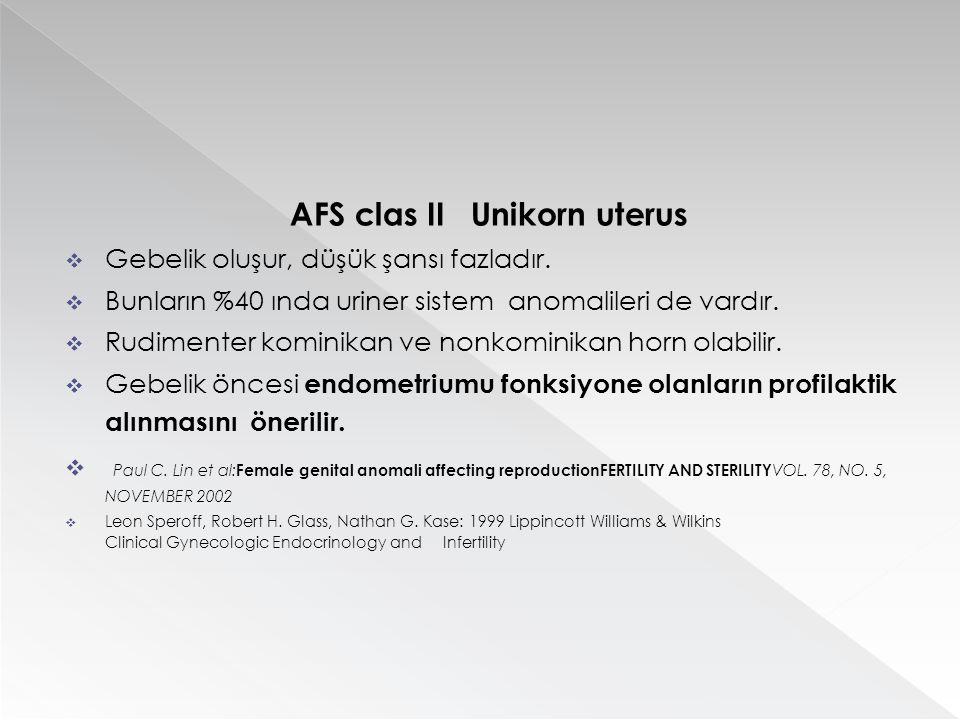 AFS clas II Unikorn uterus  Gebelik oluşur, düşük şansı fazladır.  Bunların %40 ında uriner sistem anomalileri de vardır.  Rudimenter kominikan ve