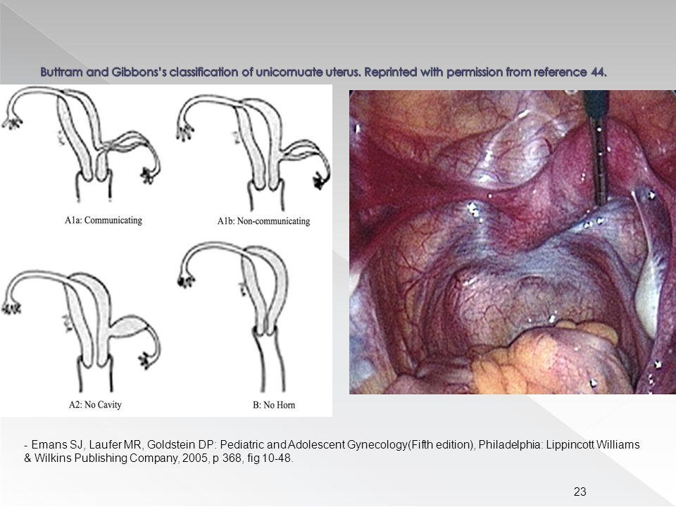 23 - Emans SJ, Laufer MR, Goldstein DP: Pediatric and Adolescent Gynecology(Fifth edition), Philadelphia: Lippincott Williams & Wilkins Publishing Company, 2005, p 368, fig 10-48.