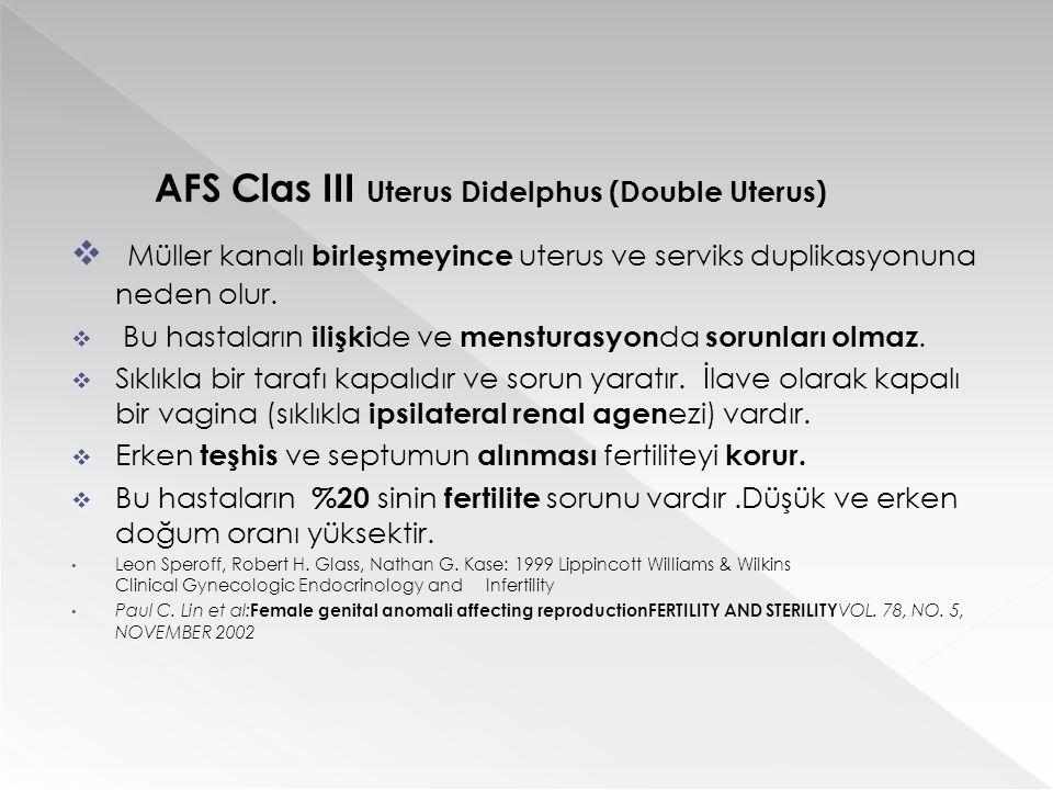 AFS Clas III Uterus Didelphus (Double Uterus)  Müller kanalı birleşmeyince uterus ve serviks duplikasyonuna neden olur.  Bu hastaların ilişki de ve