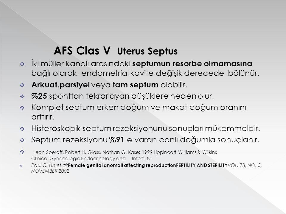 AFS Clas V Uterus Septus  İki müller kanalı arasındaki septumun resorbe olmamasına bağlı olarak endometrial kavite değişik derecede bölünür.  Arkuat