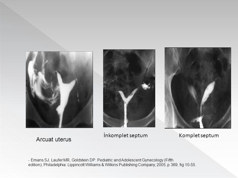 İnkomplet septumKomplet septum Arcuat uterus - Emans SJ, Laufer MR, Goldstein DP: Pediatric and Adolescent Gynecology (Fifth edition), Philadelphia: L