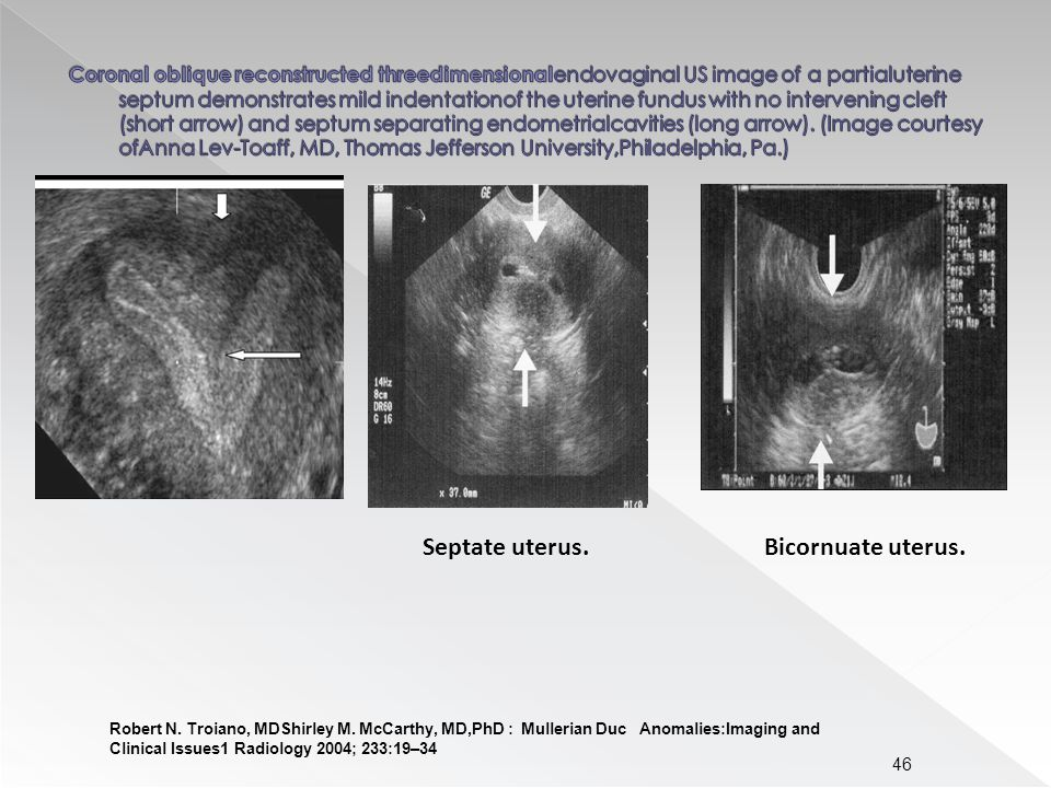 46 Robert N. Troiano, MDShirley M. McCarthy, MD,PhD : Mullerian Duc Anomalies:Imaging and Clinical Issues1 Radiology 2004; 233:19–34 Septate uterus.Bi