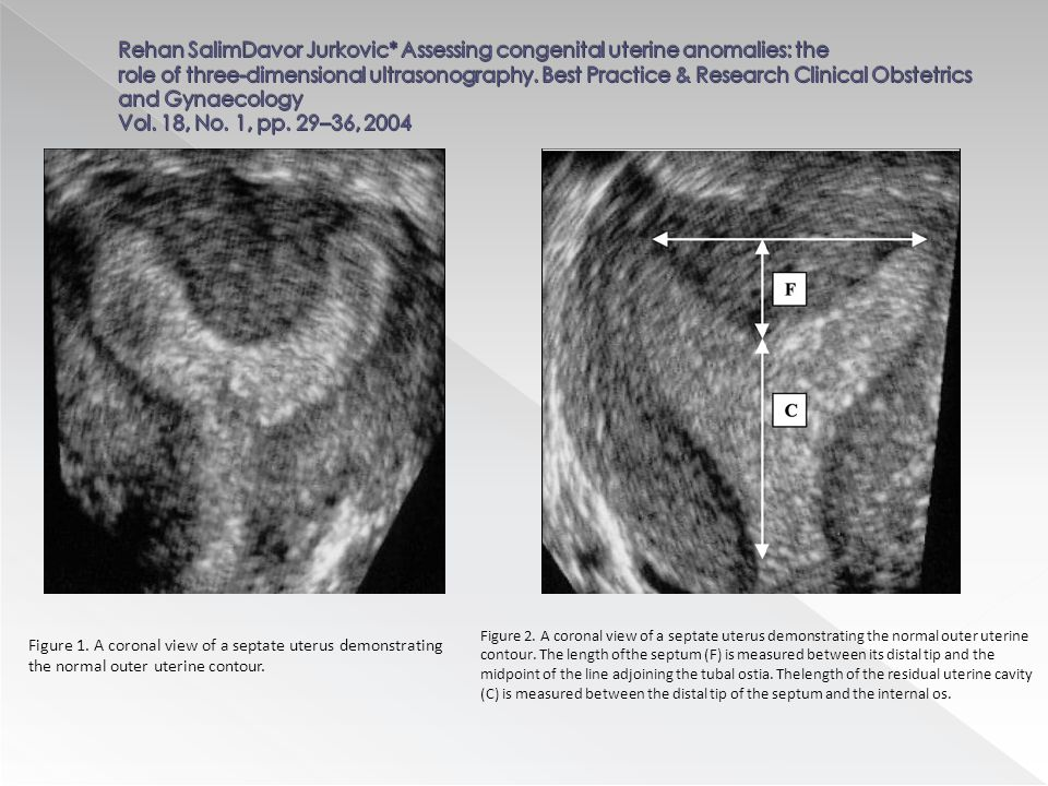 Figure 1. A coronal view of a septate uterus demonstrating the normal outer uterine contour. Figure 2. A coronal view of a septate uterus demonstratin