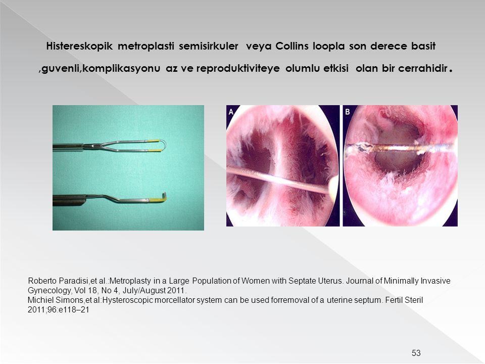 Histereskopik metroplasti semisirkuler veya Collins loopla son derece basit,guvenli,komplikasyonu az ve reproduktiviteye olumlu etkisi olan bir cerrah