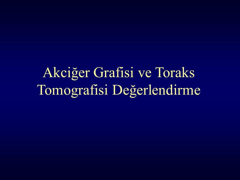 Akciğer Grafisi ve Toraks Tomografisi Değerlendirme