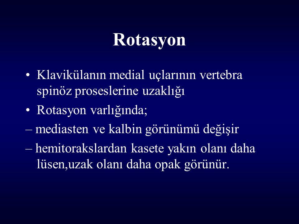 Rotasyon Klavikülanın medial uçlarının vertebra spinöz proseslerine uzaklığı Rotasyon varlığında; – mediasten ve kalbin görünümü değişir – hemitorakslardan kasete yakın olanı daha lüsen,uzak olanı daha opak görünür.