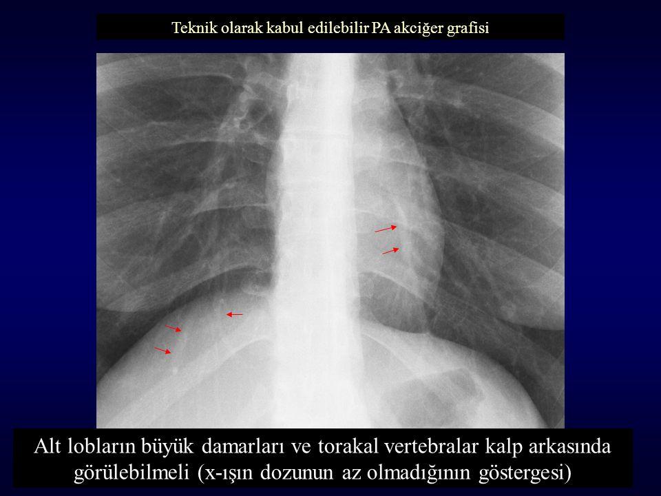 Alt lobların büyük damarları ve torakal vertebralar kalp arkasında görülebilmeli (x-ışın dozunun az olmadığının göstergesi) Teknik olarak kabul edilebilir PA akciğer grafisi