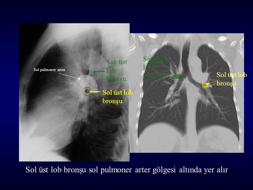 Sol üst lob bronşu Sağ üst lob bronşu Sol üst lob bronşu Sağ üst lob bronşu Sol üst lob bronşu sol pulmoner arter gölgesi altında yer alır Sol pulmoner arter