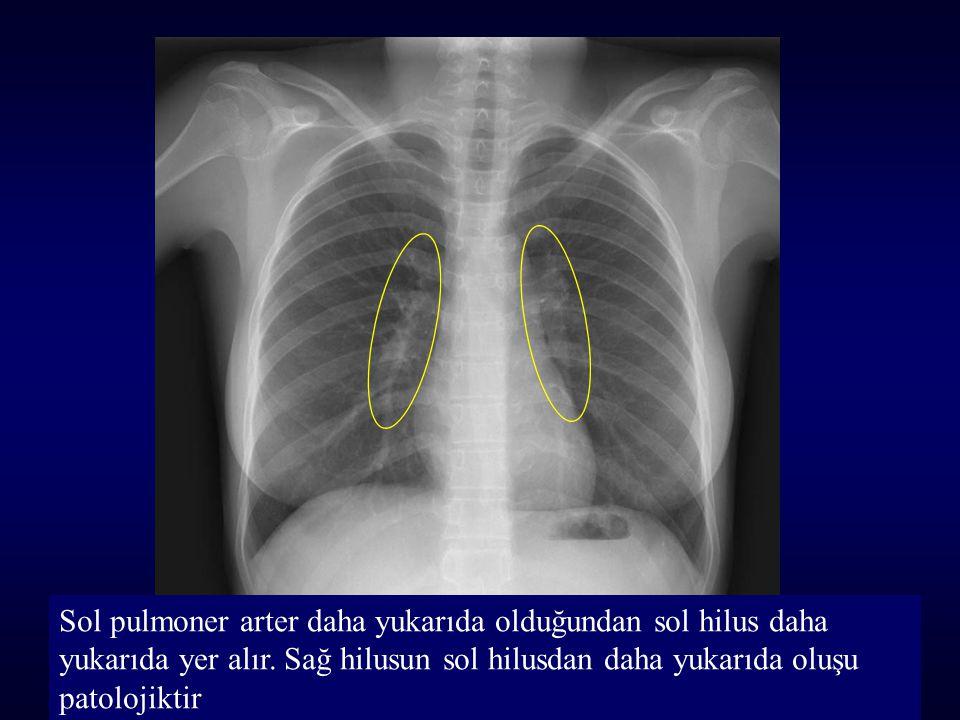 Sol pulmoner arter daha yukarıda olduğundan sol hilus daha yukarıda yer alır. Sağ hilusun sol hilusdan daha yukarıda oluşu patolojiktir