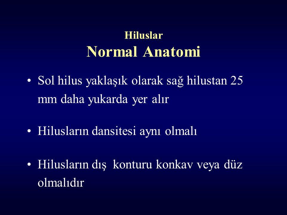Hiluslar Normal Anatomi Sol hilus yaklaşık olarak sağ hilustan 25 mm daha yukarda yer alır Hilusların dansitesi aynı olmalı Hilusların dış konturu konkav veya düz olmalıdır