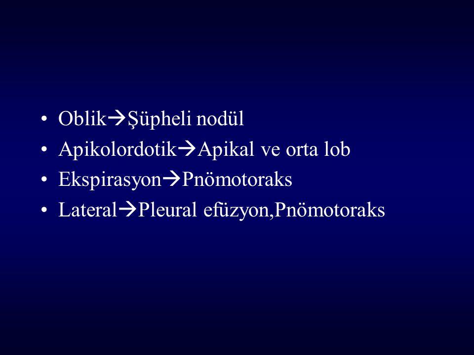 Oblik  Şüpheli nodül Apikolordotik  Apikal ve orta lob Ekspirasyon  Pnömotoraks Lateral  Pleural efüzyon,Pnömotoraks