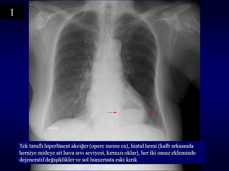 Tek taraflı hiperlüsent akciğer (opere meme ca), hiatal herni (kalb arkasında herniye mideye ait hava sıvı seviyesi, kırmızı oklar), her iki omuz ekleminde dejeneratif değişiklikler ve sol humerusta eski kırık 1