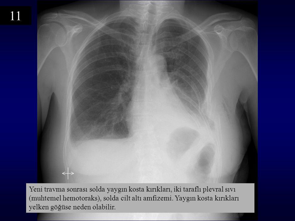 Yeni travma sonrası solda yaygın kosta kırıkları, iki taraflı plevral sıvı (muhtemel hemotoraks), solda cilt altı amfizemi.