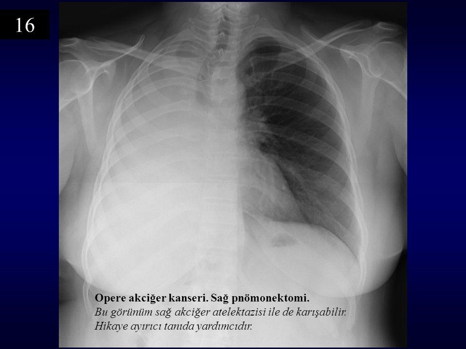 Opere akciğer kanseri.Sağ pnömonektomi. Bu görünüm sağ akciğer atelektazisi ile de karışabilir.