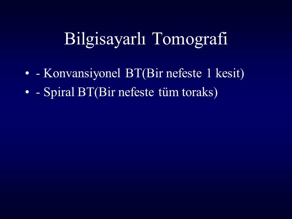 Bilgisayarlı Tomografi - Konvansiyonel BT(Bir nefeste 1 kesit) - Spiral BT(Bir nefeste tüm toraks)