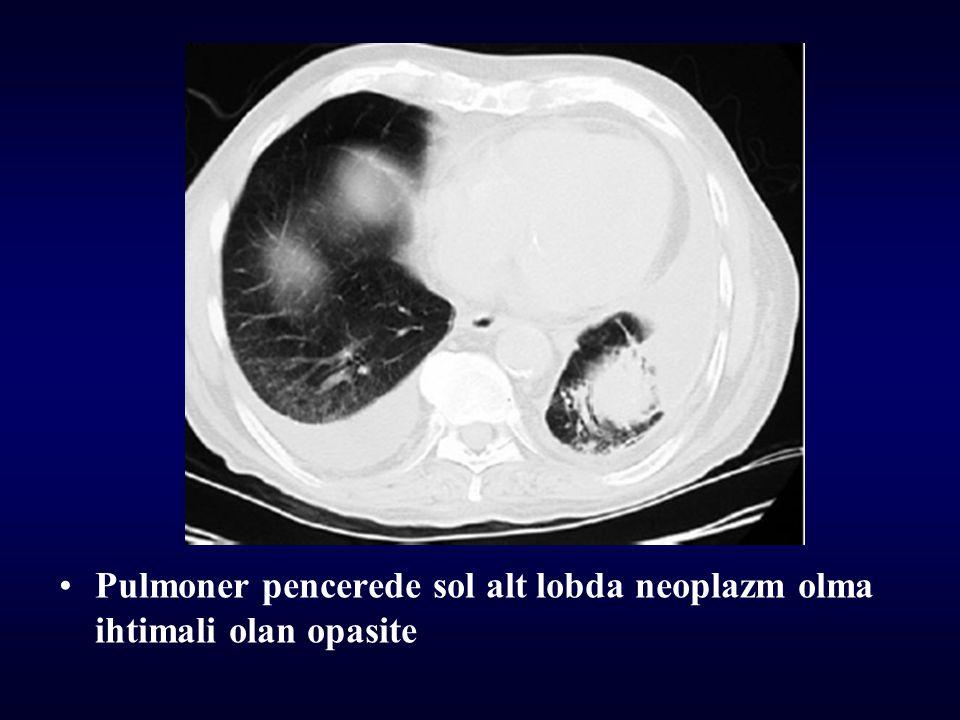 Pulmoner pencerede sol alt lobda neoplazm olma ihtimali olan opasite