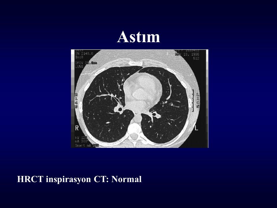 Astım HRCT inspirasyon CT: Normal