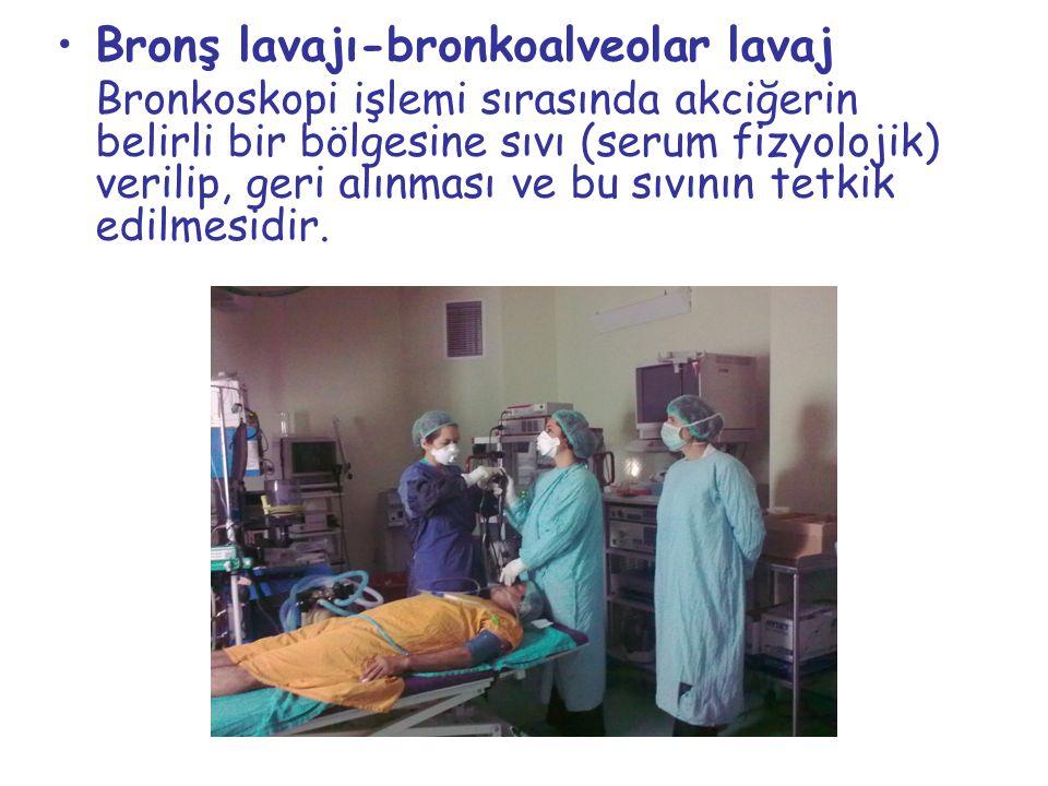 Bronş lavajı-bronkoalveolar lavaj Bronkoskopi işlemi sırasında akciğerin belirli bir bölgesine sıvı (serum fizyolojik) verilip, geri alınması ve bu sı