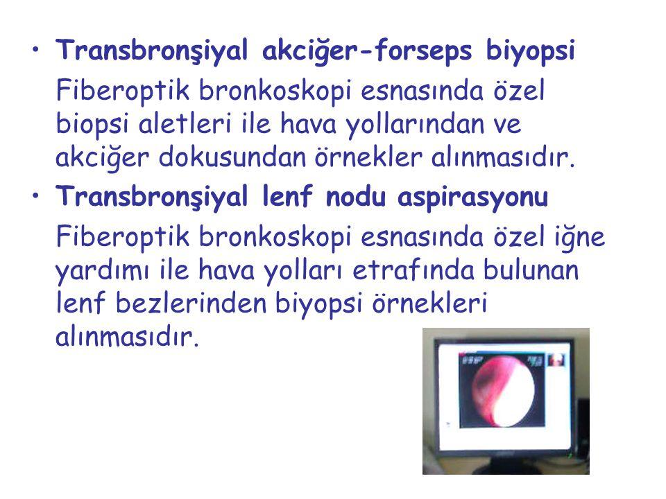 Transbronşiyal akciğer-forseps biyopsi Fiberoptik bronkoskopi esnasında özel biopsi aletleri ile hava yollarından ve akciğer dokusundan örnekler alınm