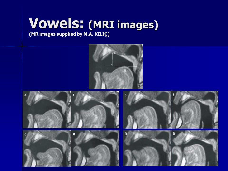 Vowels: (MRI images) (MR images supplied by M.A. KILIÇ)