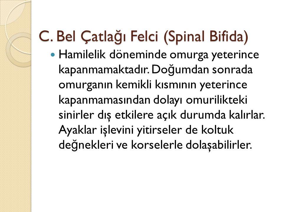 C. Bel Çatla ğ ı Felci (Spinal Bifida) Hamilelik döneminde omurga yeterince kapanmamaktadır. Do ğ umdan sonrada omurganın kemikli kısmının yeterince k