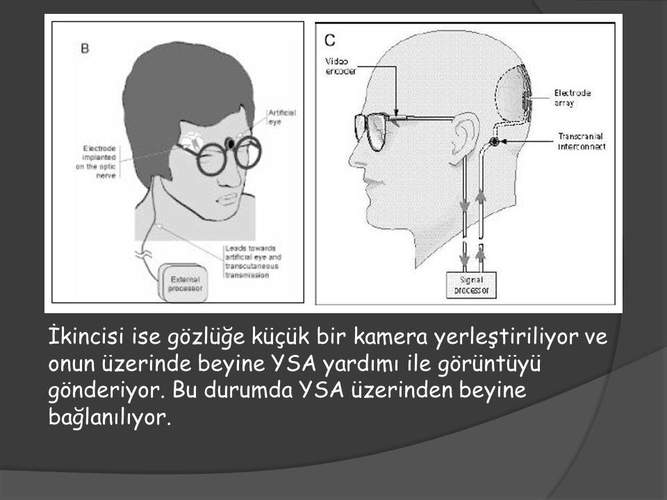İkincisi ise gözlüğe küçük bir kamera yerleştiriliyor ve onun üzerinde beyine YSA yardımı ile görüntüyü gönderiyor. Bu durumda YSA üzerinden beyine ba