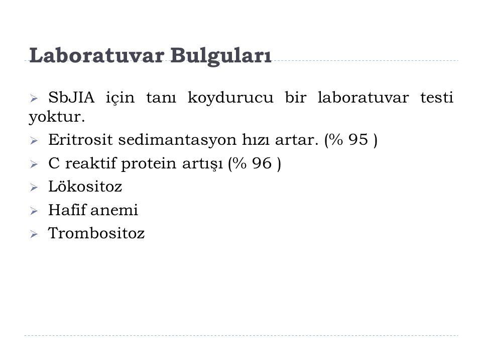 Laboratuvar Bulguları  SbJIA için tanı koydurucu bir laboratuvar testi yoktur.