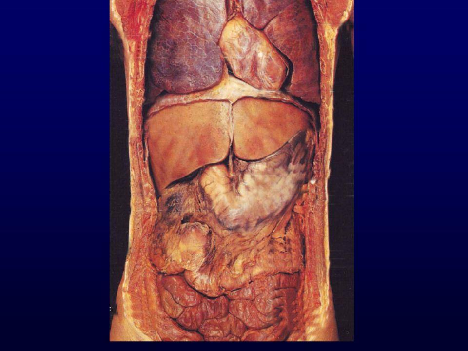 Nonselektif şantlar portal kan akımını total olarak saptırırlar.