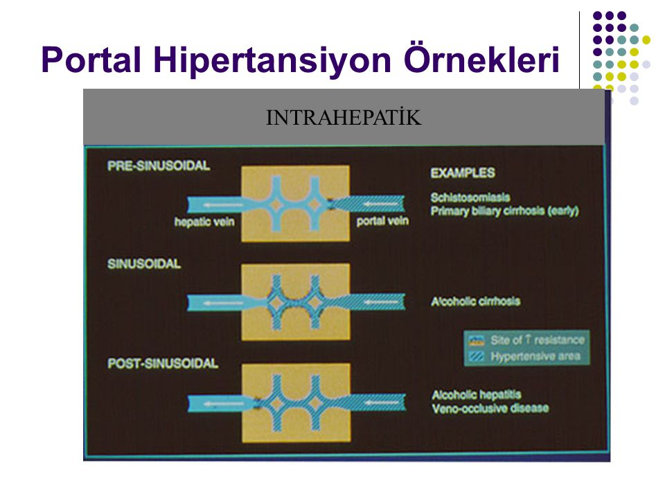 Portal Hipertansiyon Örnekleri INTRAHEPATİK