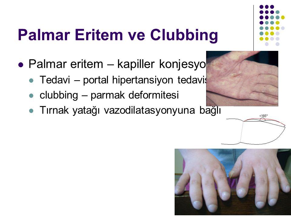 Palmar Eritem ve Clubbing Palmar eritem – kapiller konjesyona bağlı Tedavi – portal hipertansiyon tedavisi clubbing – parmak deformitesi Tırnak yatağı