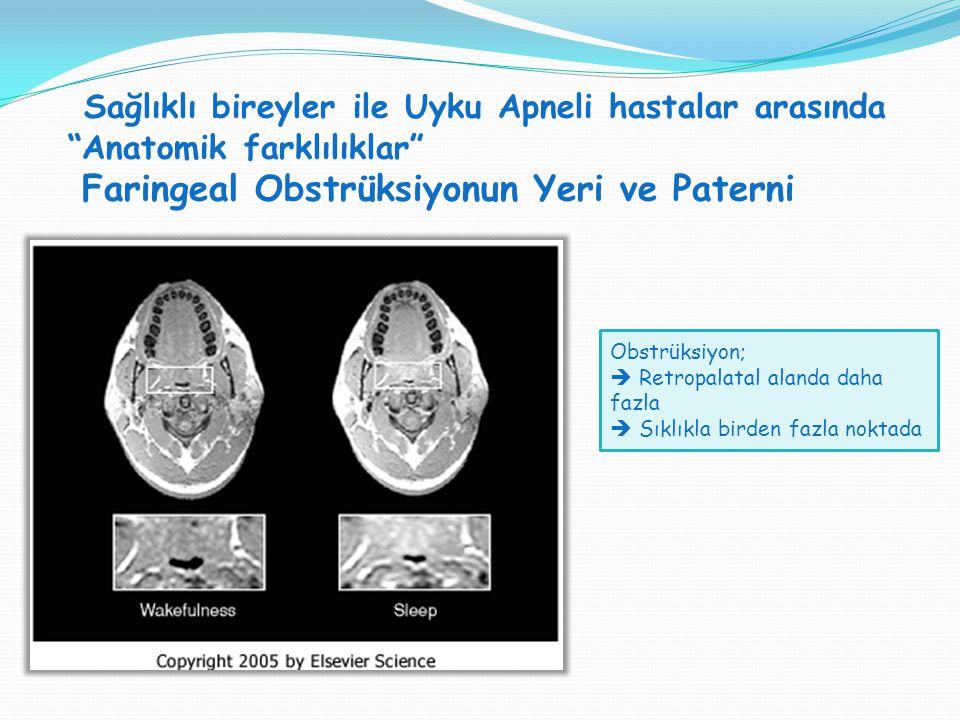 """Sağlıklı bireyler ile Uyku Apneli hastalar arasında """"Anatomik farklılıklar"""" Faringeal Obstrüksiyonun Yeri ve Paterni SVT H : SVT V = 1:1 Obstrüksiyon;"""