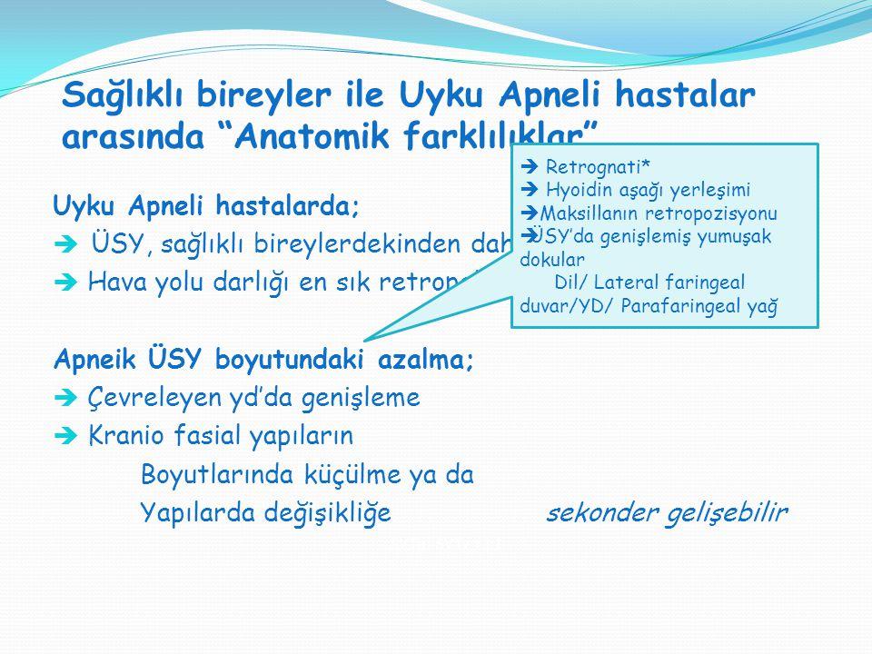 """Sağlıklı bireyler ile Uyku Apneli hastalar arasında """"Anatomik farklılıklar"""" SVT H : SVT V = 1:1 Uyku Apneli hastalarda;  ÜSY, sağlıklı bireylerdekind"""