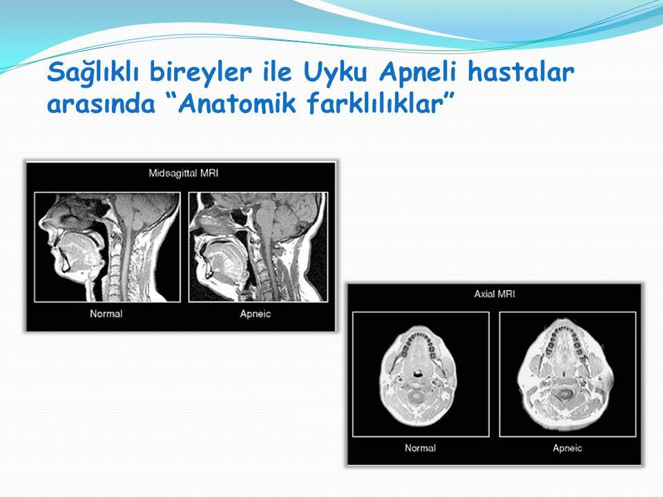 """Sağlıklı bireyler ile Uyku Apneli hastalar arasında """"Anatomik farklılıklar"""" SVT H : SVT V = 1:1"""