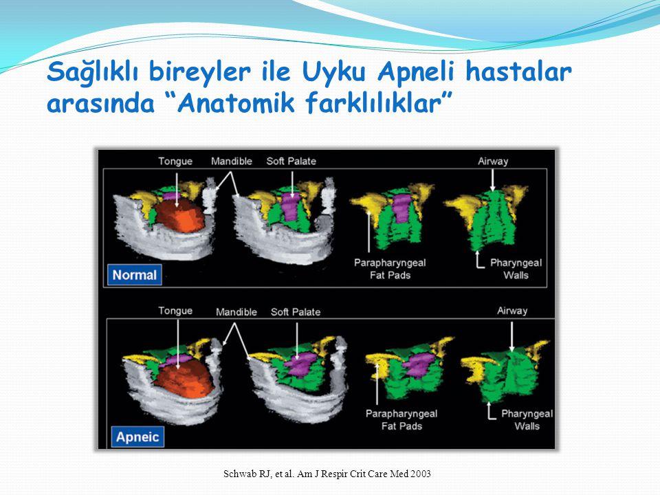 """Sağlıklı bireyler ile Uyku Apneli hastalar arasında """"Anatomik farklılıklar"""" SVT H : SVT V = 1:1 Schwab RJ, et al. Am J Respir Crit Care Med 2003"""