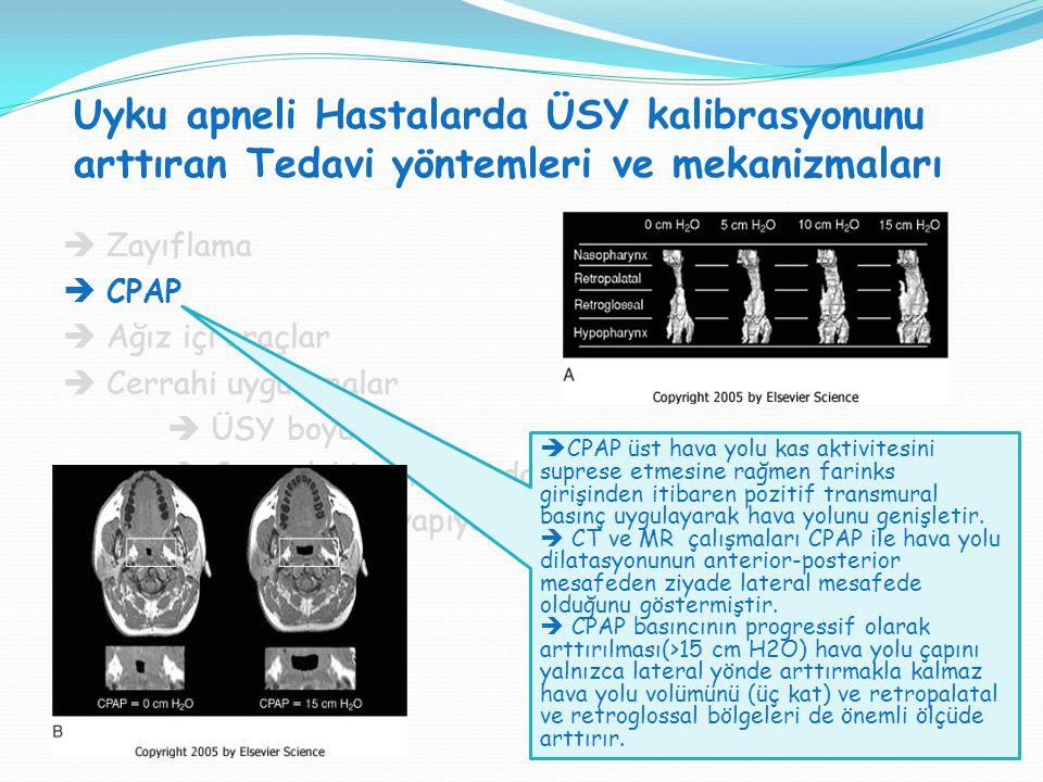 Uyku apneli Hastalarda ÜSY kalibrasyonunu arttıran Tedavi yöntemleri ve mekanizmaları SVT H : SVT V = 1:1  Zayıflama  CPAP  Ağız içi araçlar  Cerr