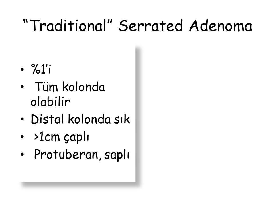 """Traditional"" Serrated Adenoma %1'i Tüm kolonda olabilir Distal kolonda sık >1cm çaplı Protuberan, saplı %1'i Tüm kolonda olabilir Distal kolonda sık"