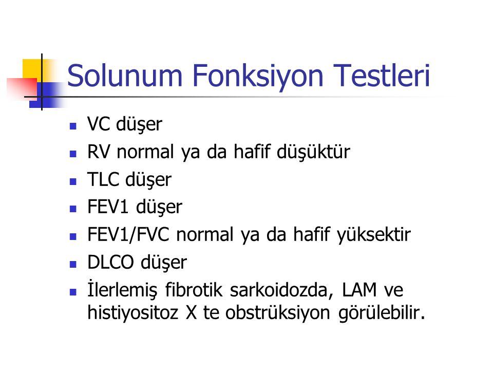 Solunum Fonksiyon Testleri VC düşer RV normal ya da hafif düşüktür TLC düşer FEV1 düşer FEV1/FVC normal ya da hafif yüksektir DLCO düşer İlerlemiş fib