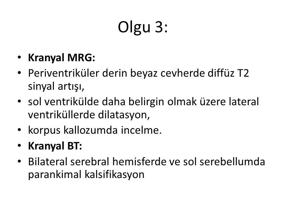 Olgu 3: Kranyal MRG: Periventriküler derin beyaz cevherde diffüz T2 sinyal artışı, sol ventrikülde daha belirgin olmak üzere lateral ventriküllerde di