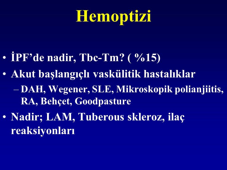 Hemoptizi İPF'de nadir, Tbc-Tm? ( %15) Akut başlangıçlı vaskülitik hastalıklar –DAH, Wegener, SLE, Mikroskopik polianjiitis, RA, Behçet, Goodpasture N