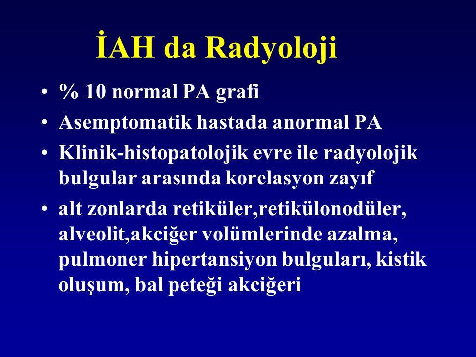 İAH da Radyoloji % 10 normal PA grafi Asemptomatik hastada anormal PA Klinik-histopatolojik evre ile radyolojik bulgular arasında korelasyon zayıf alt