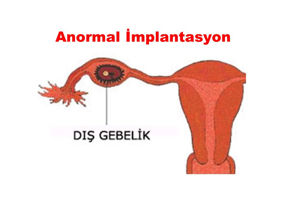 Anormal İmplantasyon