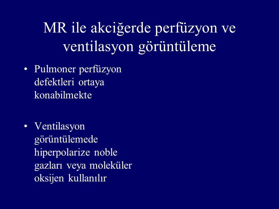 MR ile akciğerde perfüzyon ve ventilasyon görüntüleme Pulmoner perfüzyon defektleri ortaya konabilmekte Ventilasyon görüntülemede hiperpolarize noble
